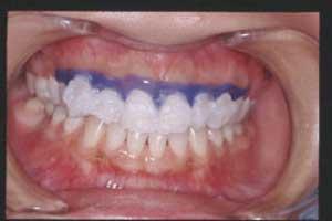 歯面にパワーホワイトニング用のジェルを塗布