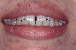前歯の隙間を治したい