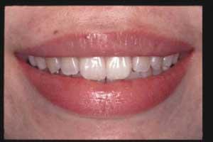 前歯2本をラミネートベニアすることで 隙間のないきれいな歯列に回復しました。
